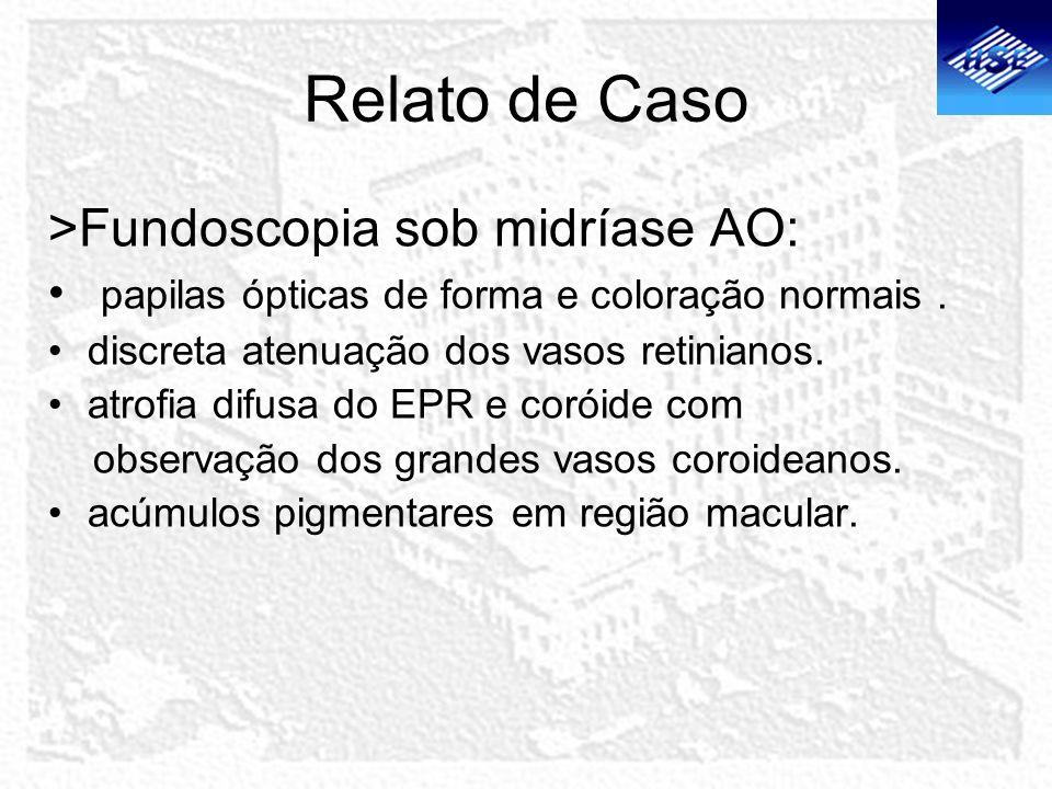 Relato de Caso >Fundoscopia sob midríase AO: papilas ópticas de forma e coloração normais. discreta atenuação dos vasos retinianos. atrofia difusa do