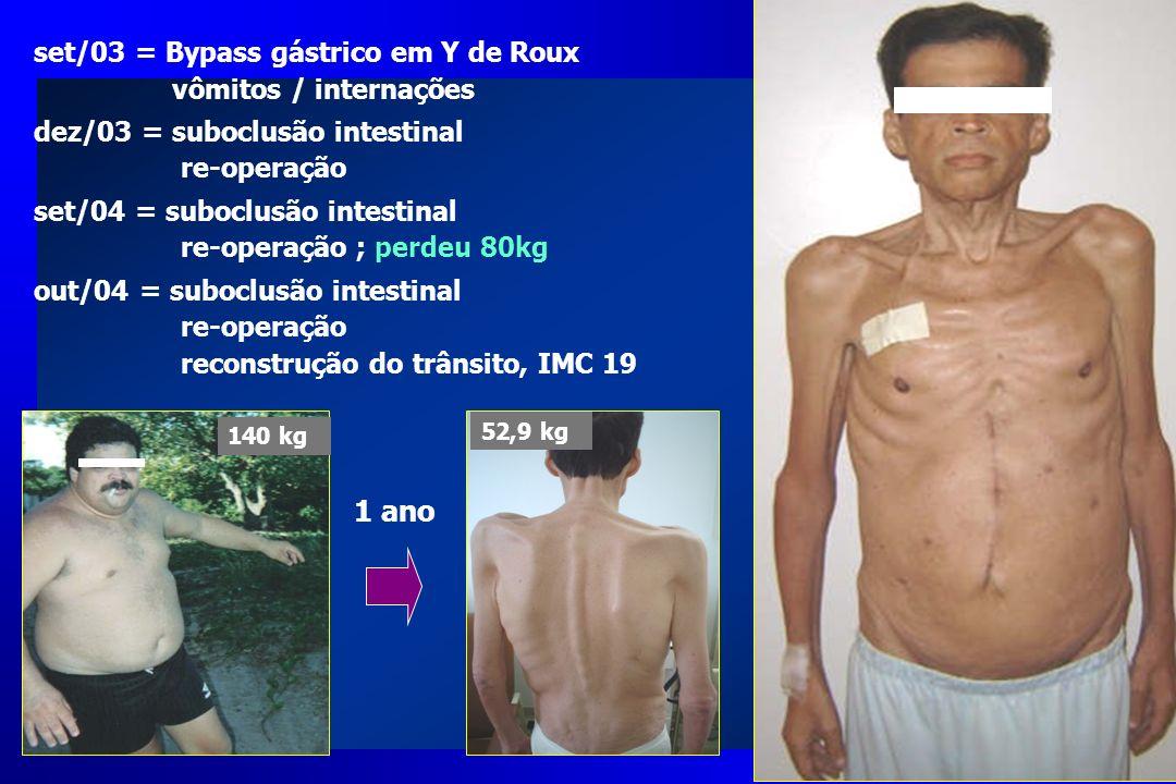 1 ano 140 kg 52,9 kg set/03 = Bypass gástrico em Y de Roux vômitos / internações dez/03 = suboclusão intestinal re-operação set/04 = suboclusão intest
