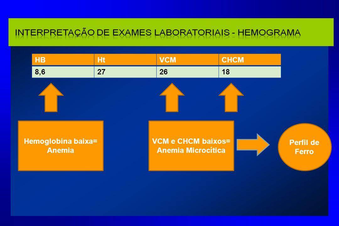 HBHtVCMCHCM 8,6272618 Hemoglobina baixa= Anemia VCM e CHCM baixos= Anemia Microcítica Perfil de Ferro