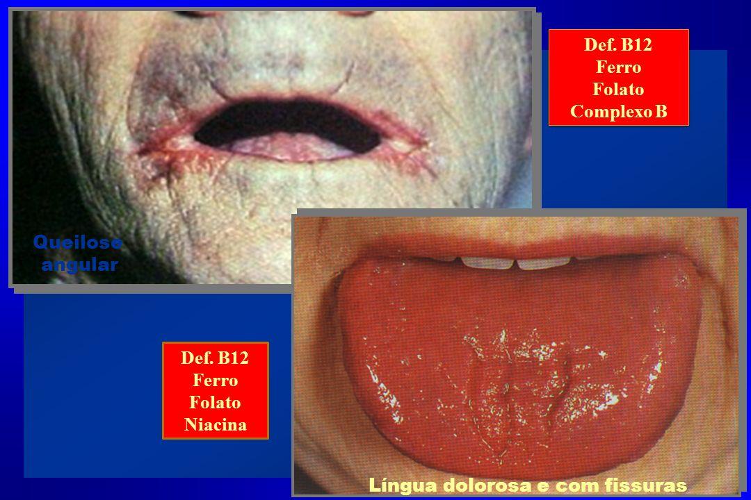 Queilose angular Língua dolorosa e com fissuras Def. B12 Ferro Folato Niacina Def. B12 Ferro Folato Complexo B Def. B12 Ferro Folato Complexo B
