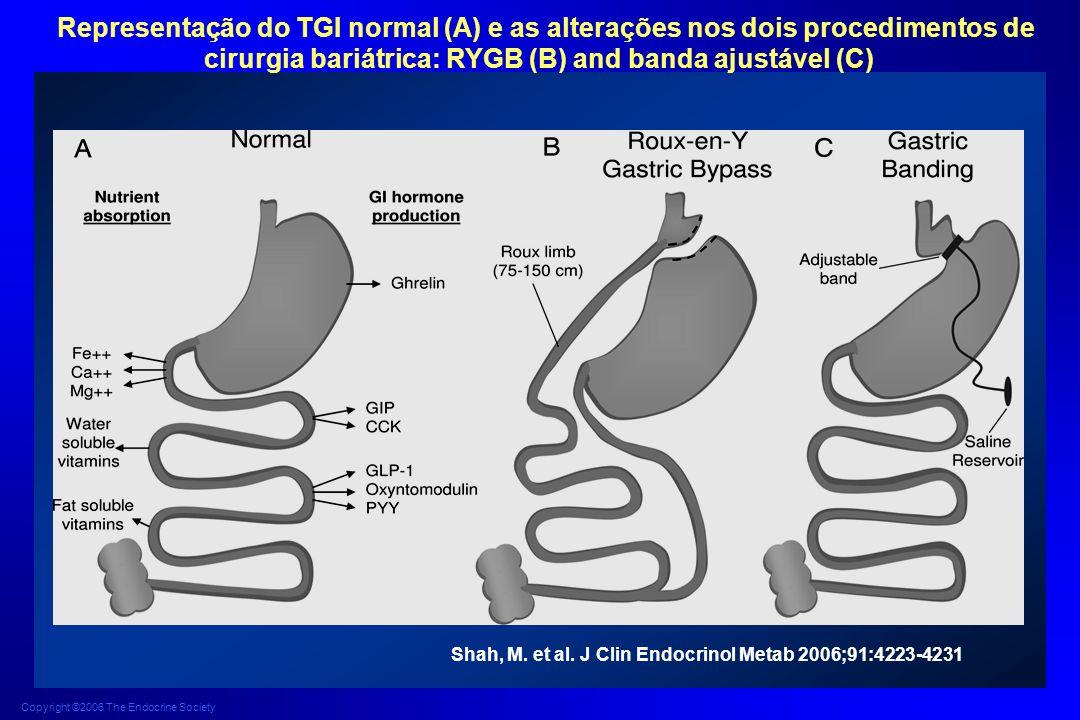Copyright ©2006 The Endocrine Society Shah, M. et al. J Clin Endocrinol Metab 2006;91:4223-4231 Representação do TGI normal (A) e as alterações nos do
