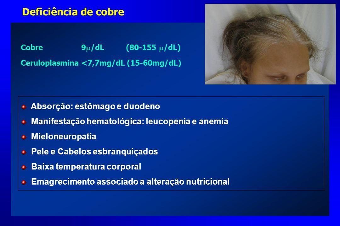 Deficiência de cobre Absorção: estômago e duodeno Manifestação hematológica: leucopenia e anemia Mieloneuropatia Pele e Cabelos esbranquiçados Baixa t