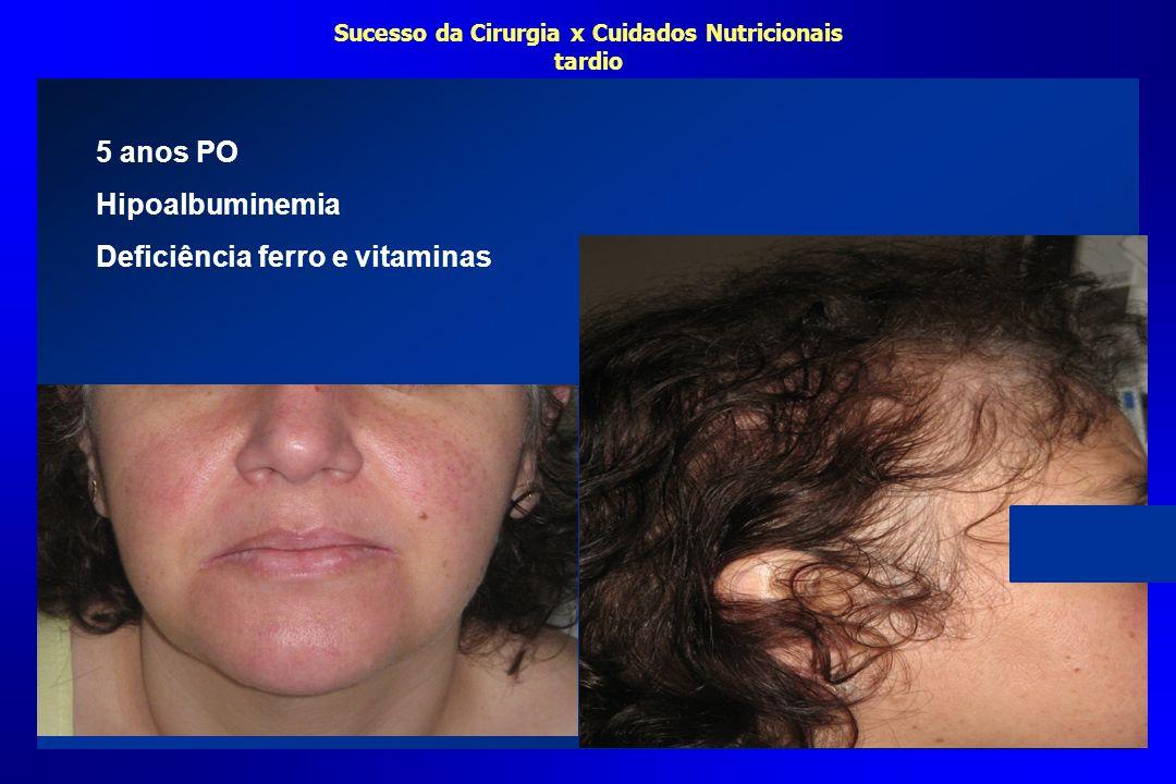 Sucesso da Cirurgia x Cuidados Nutricionais tardio 5 anos PO Hipoalbuminemia Deficiência ferro e vitaminas