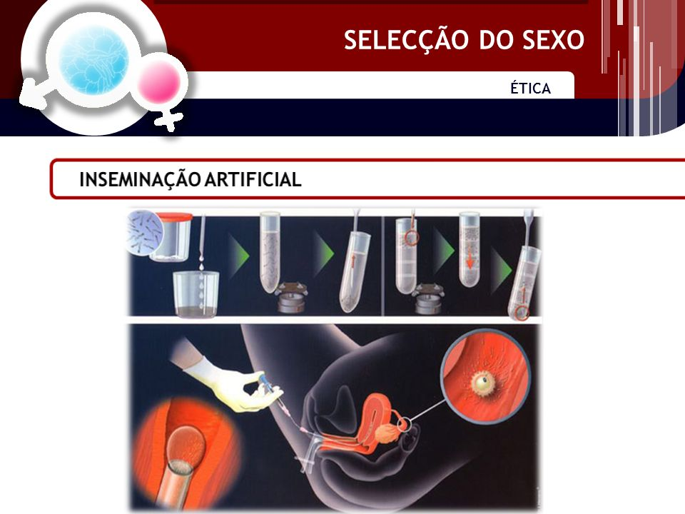 ÉTICA SELECÇÃO DO SEXO Hemofilia Síndrome do X frágil Distrofias neuromusculares Hemofilia Síndrome do X frágil Distrofias neuromusculares Prevenção de doenças genéticas ligadas ao X