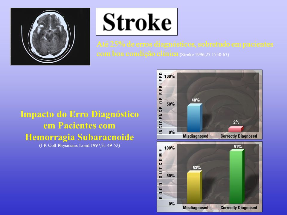 Impacto do Erro Diagnóstico em Pacientes com Hemorragia Subaracnoide (J R Coll Physicians Lond 1997;31:49-52) Até 25% de erros diagnósticos, sobretudo