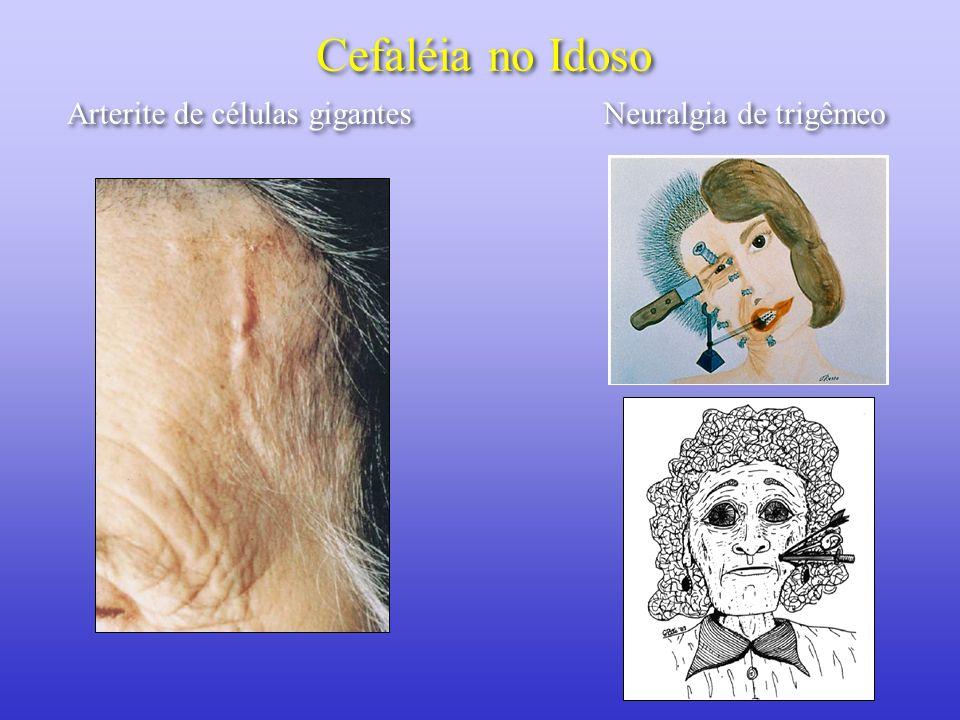 Cefaléia no Idoso Arterite de células gigantes Neuralgia de trigêmeo
