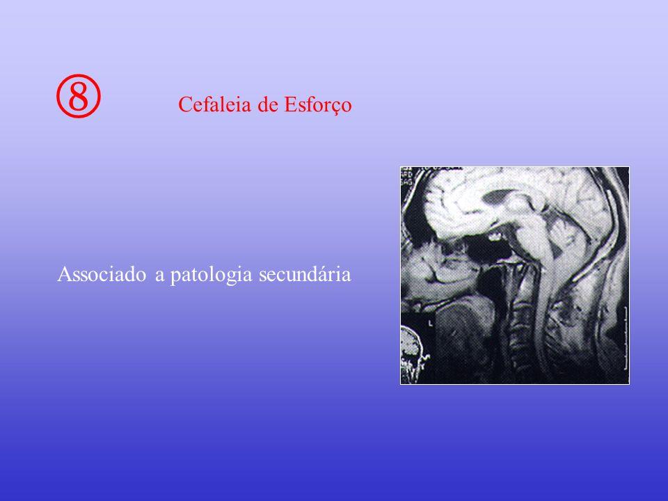 Cefaleia de Esforço Associado a patologia secundária