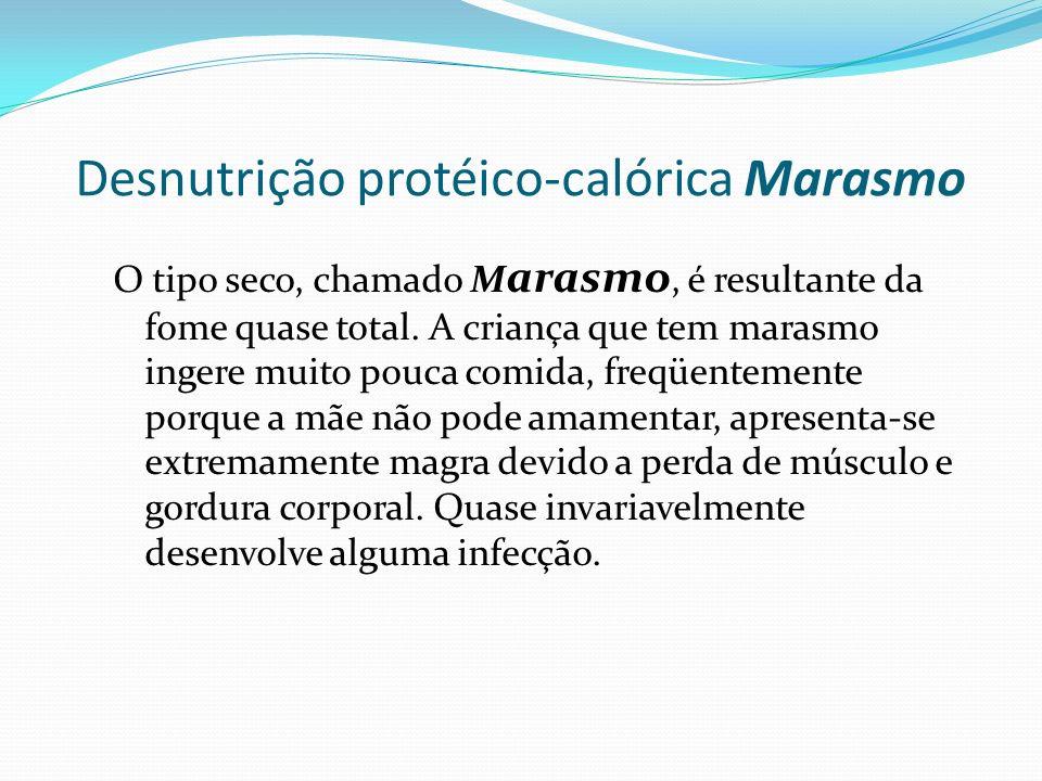 Desnutrição protéico-calórica Marasmo O tipo seco, chamado M arasmo, é resultante da fome quase total. A criança que tem marasmo ingere muito pouca co