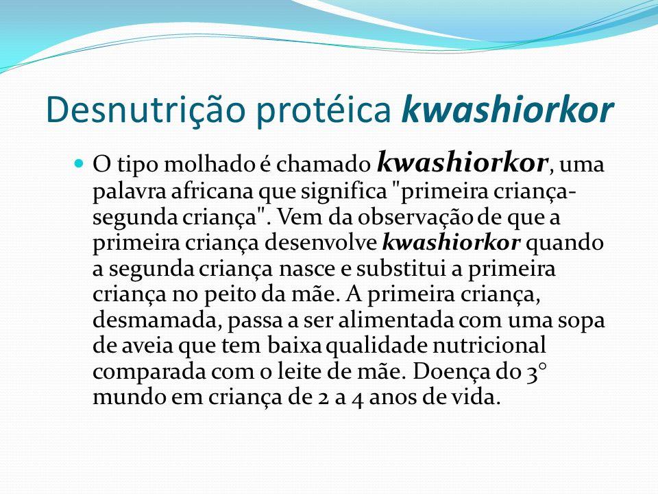 Desnutrição protéica kwashiorkor O tipo molhado é chamado kwashiorkor, uma palavra africana que significa