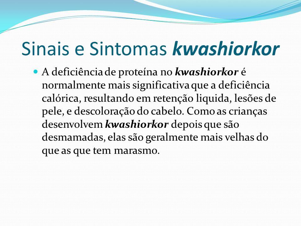 Sinais e Sintomas kwashiorkor A deficiência de proteína no kwashiorkor é normalmente mais significativa que a deficiência calórica, resultando em rete
