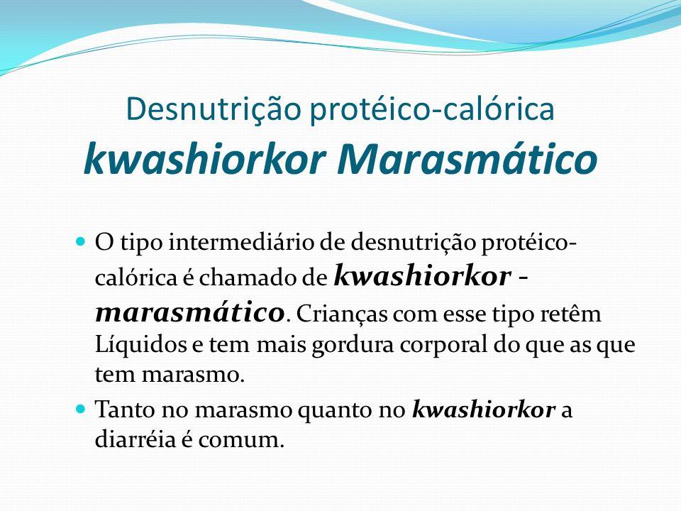 Desnutrição protéico-calórica kwashiorkor Marasmático O tipo intermediário de desnutrição protéico- calórica é chamado de kwashiorkor - marasmático. C