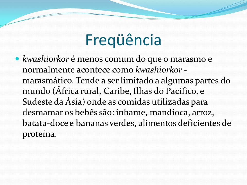Freqüência kwashiorkor é menos comum do que o marasmo e normalmente acontece como kwashiorkor - marasmático. Tende a ser limitado a algumas partes do