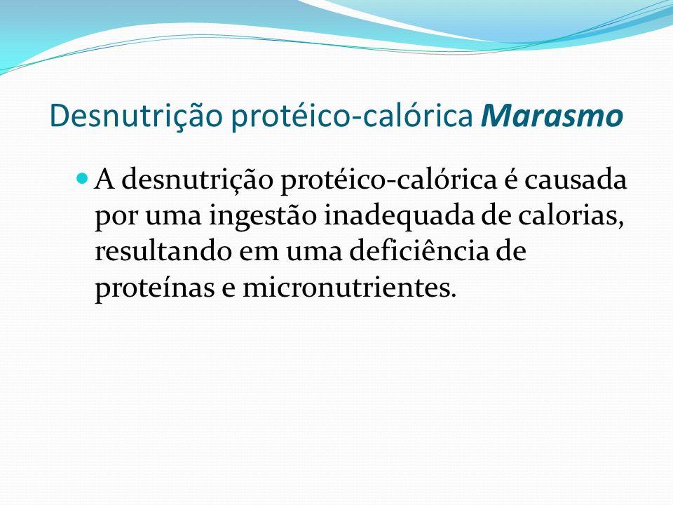Desnutrição protéico-calórica Marasmo A desnutrição protéico-calórica é causada por uma ingestão inadequada de calorias, resultando em uma deficiência