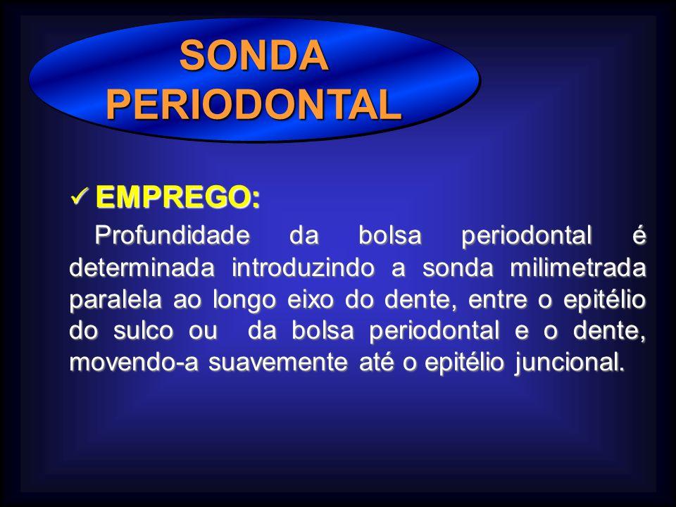 SONDAPERIODONTALSONDAPERIODONTAL EMPREGO: EMPREGO: Profundidade da bolsa periodontal é determinada introduzindo a sonda milimetrada paralela ao longo eixo do dente, entre o epitélio do sulco ou da bolsa periodontal e o dente, movendo-a suavemente até o epitélio juncional.