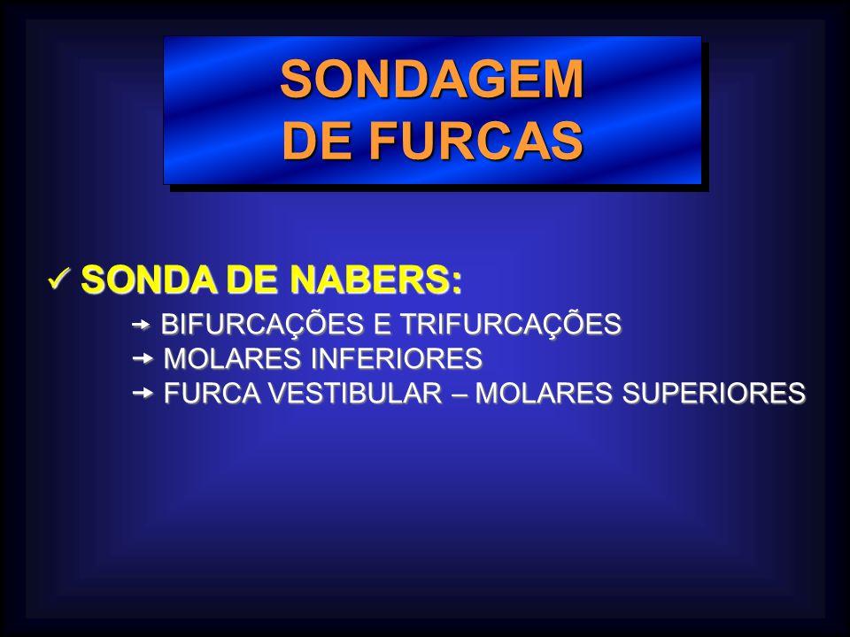 SONDAGEM DE FURCAS SONDAGEM SONDA DE NABERS: SONDA DE NABERS: BIFURCAÇÕES E TRIFURCAÇÕES BIFURCAÇÕES E TRIFURCAÇÕES MOLARES INFERIORES MOLARES INFERIORES FURCA VESTIBULAR – MOLARES SUPERIORES FURCA VESTIBULAR – MOLARES SUPERIORES