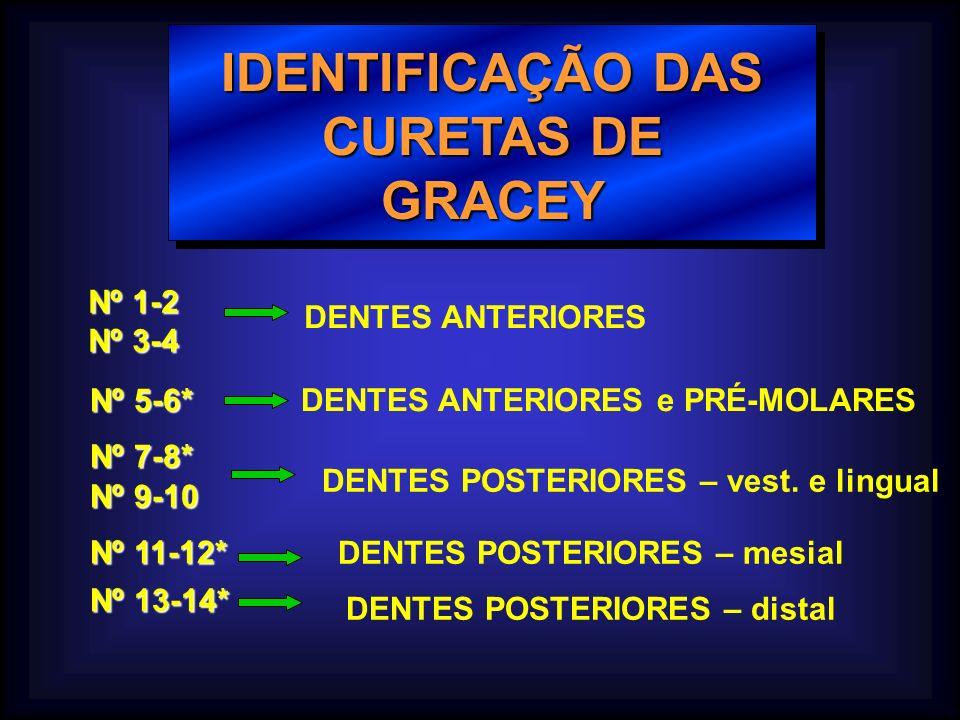 IDENTIFICAÇÃO DAS CURETAS DE GRACEY Nº 1-2 Nº 3-4 DENTES ANTERIORES Nº 5-6* DENTES ANTERIORES e PRÉ-MOLARES Nº 7-8* Nº 9-10 DENTES POSTERIORES – vest.