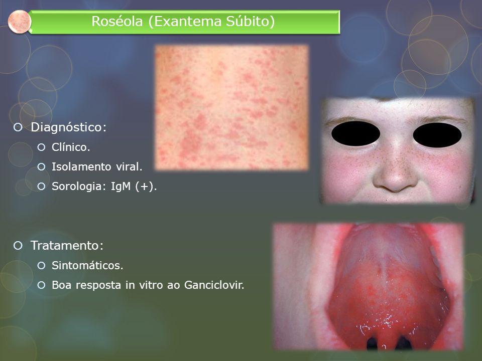 Diagnóstico: Clínico. Isolamento viral. Sorologia: IgM (+). Tratamento: Sintomáticos. Boa resposta in vitro ao Ganciclovir. Roséola (Exantema Súbito)