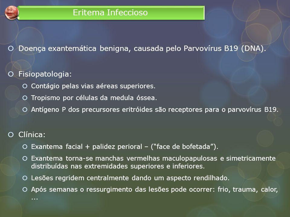 Doença exantemática benigna, causada pelo Parvovírus B19 (DNA). Fisiopatologia: Contágio pelas vias aéreas superiores. Tropismo por células da medula