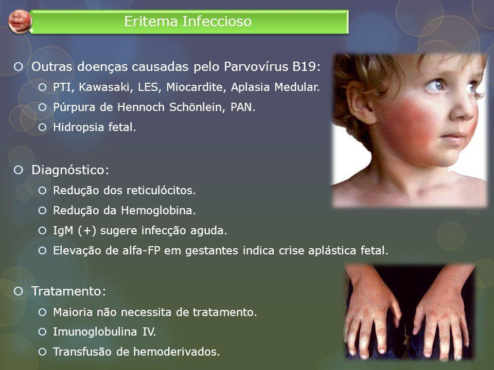 Outras doenças causadas pelo Parvovírus B19: PTI, Kawasaki, LES, Miocardite, Aplasia Medular. Púrpura de Hennoch Schönlein, PAN. Hidropsia fetal. Diag