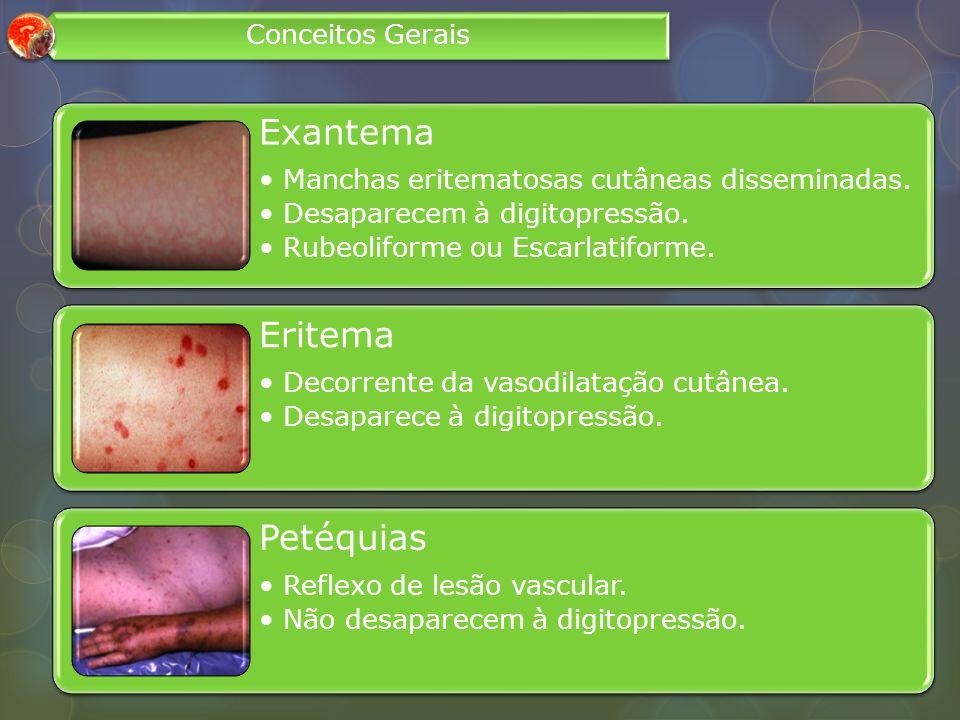 Exantema Manchas eritematosas cutâneas disseminadas. Desaparecem à digitopressão. Rubeoliforme ou Escarlatiforme. Eritema Decorrente da vasodilatação