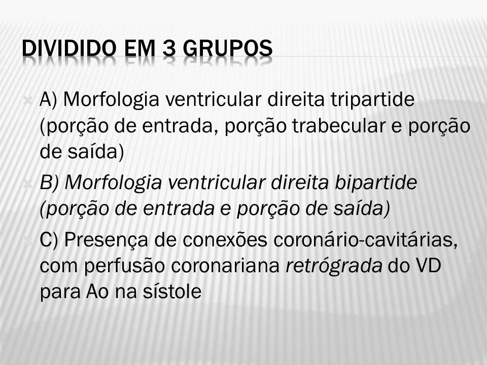 A) Morfologia ventricular direita tripartide (porção de entrada, porção trabecular e porção de saída) B) Morfologia ventricular direita bipartide (por
