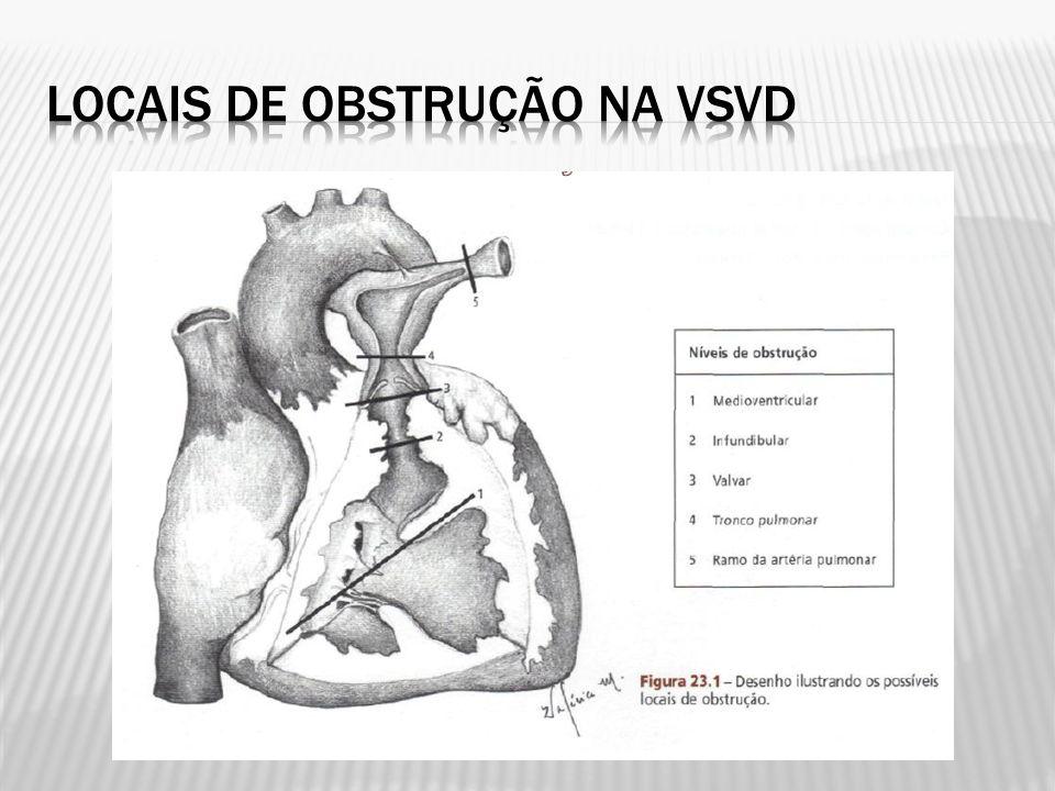 Médio de 69 +- 75,5 meses Média do gradiente VD-AP máximo medido no seguimento tardio não diferiu da obtida 24 horas após o procedimento Reintervenção em 47,1% (8/17): 2 submetidos a implante de homoenxerto em posição pulmonar, 2 oclusão percutânea de comunicação interatrial, 1 oclusão percutânea de persistência do canal arterial, 2 shunt sistêmico-pulmonar e 1 paciente foi submetido à nova valvoplastia percutânea
