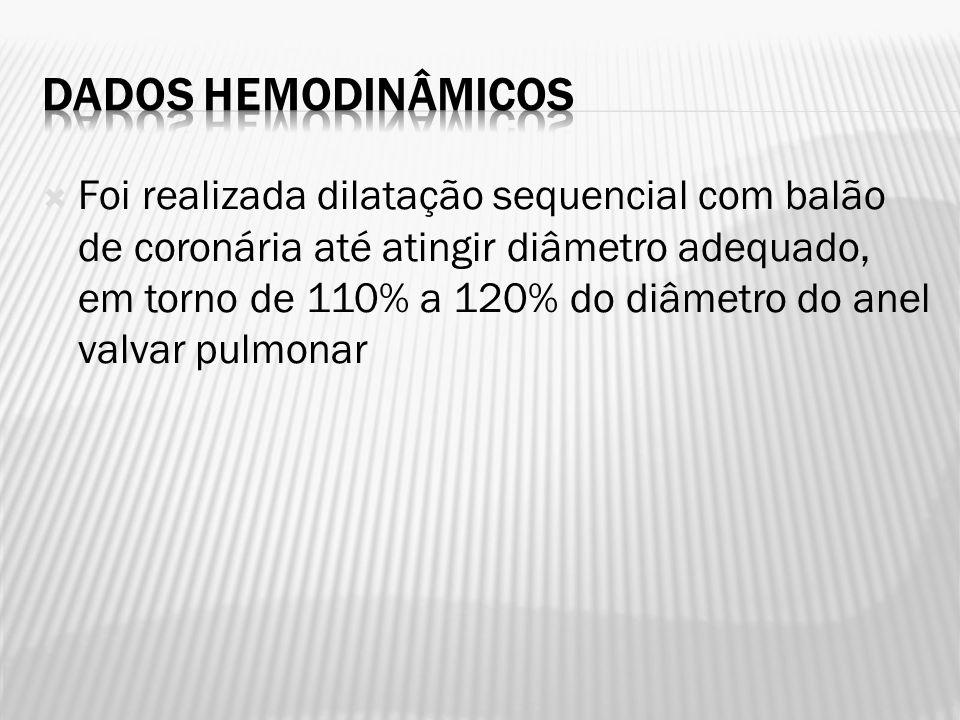 Foi realizada dilatação sequencial com balão de coronária até atingir diâmetro adequado, em torno de 110% a 120% do diâmetro do anel valvar pulmonar
