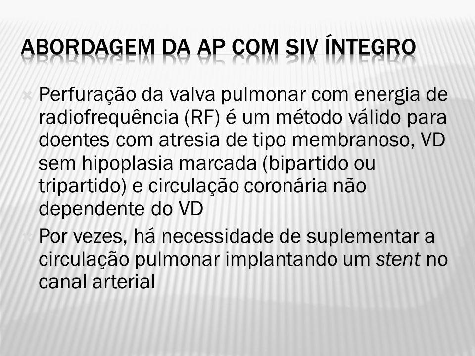 Perfuração da valva pulmonar com energia de radiofrequência (RF) é um método válido para doentes com atresia de tipo membranoso, VD sem hipoplasia mar