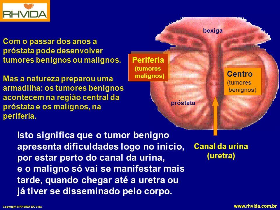 Copyright © RHVIDA S/C Ltda. Com o passar dos anos a próstata pode desenvolver tumores benignos ou malignos. Mas a natureza preparou uma armadilha: os