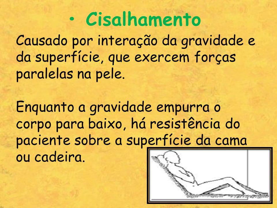 Cisalhamento Causado por interação da gravidade e da superfície, que exercem forças paralelas na pele. Enquanto a gravidade empurra o corpo para baixo