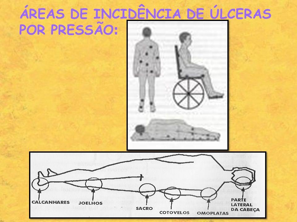 ÁREAS DE INCIDÊNCIA DE ÚLCERAS POR PRESSÃO :
