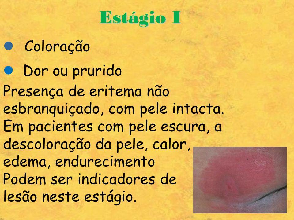 Estágio I Coloração Dor ou prurido Presença de eritema não esbranquiçado, com pele intacta. Em pacientes com pele escura, a descoloração da pele, calo