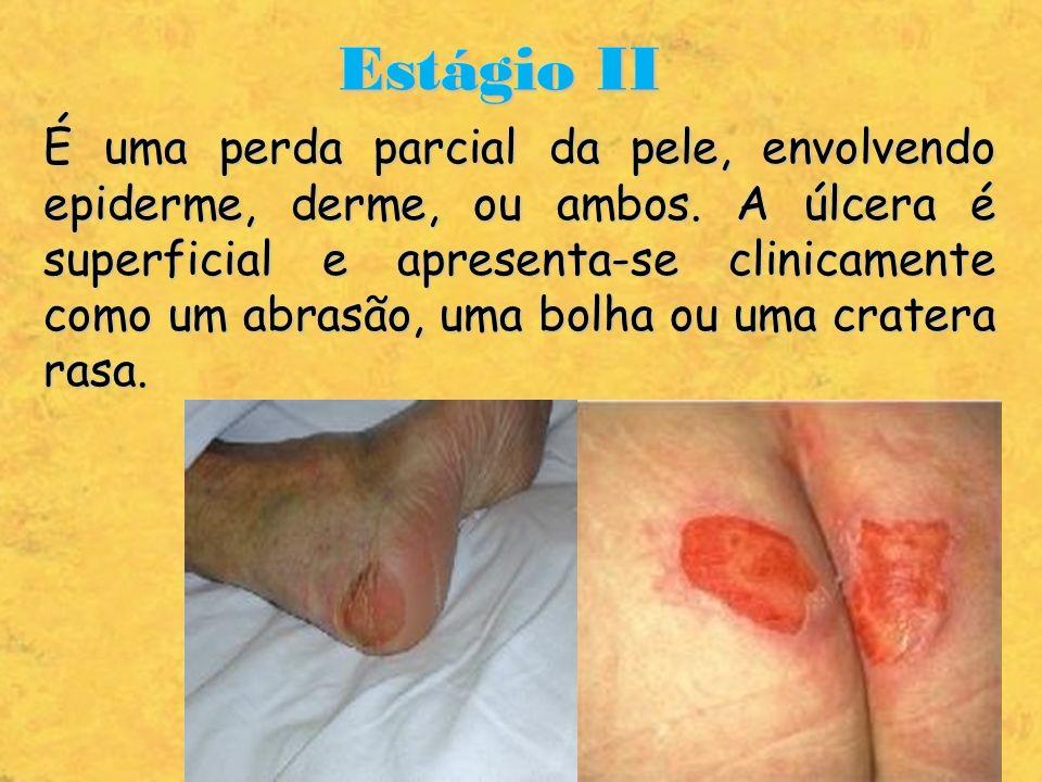 Estágio II É uma perda parcial da pele, envolvendo epiderme, derme, ou ambos. A úlcera é superficial e apresenta-se clinicamente como um abrasão, uma