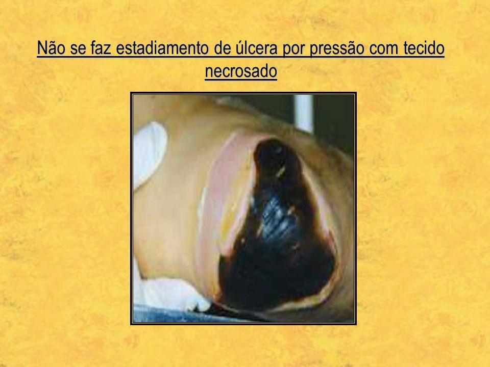 Não se faz estadiamento de úlcera por pressão com tecido necrosado