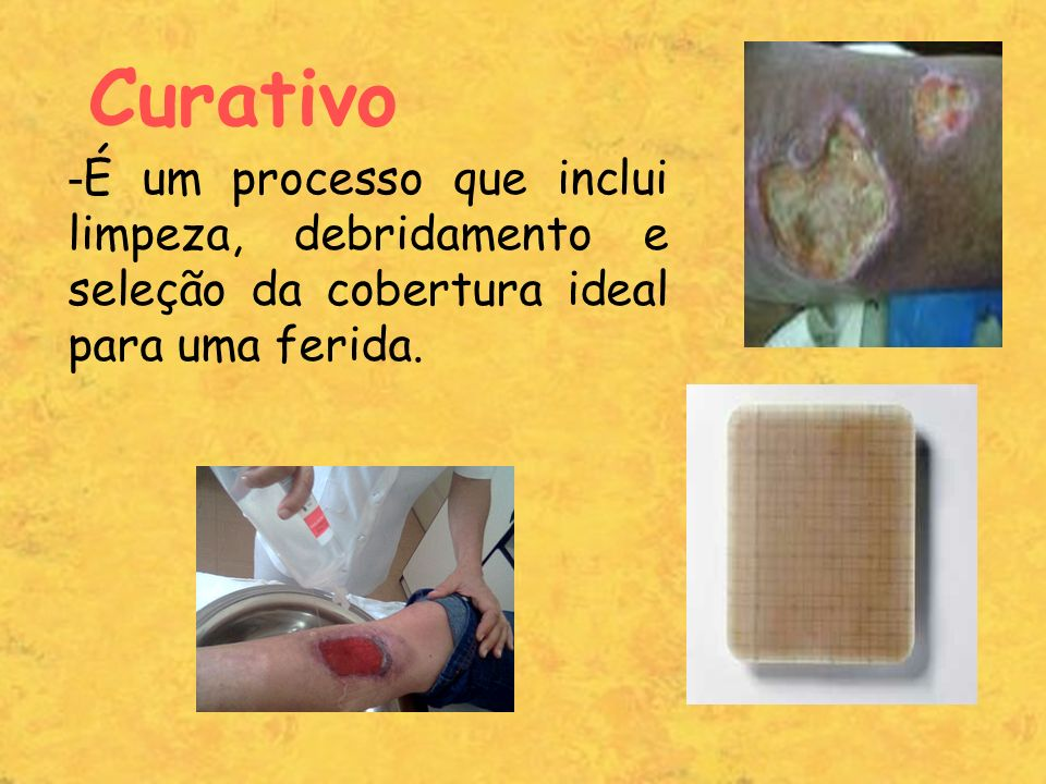 Curativo - É um processo que inclui limpeza, debridamento e seleção da cobertura ideal para uma ferida.