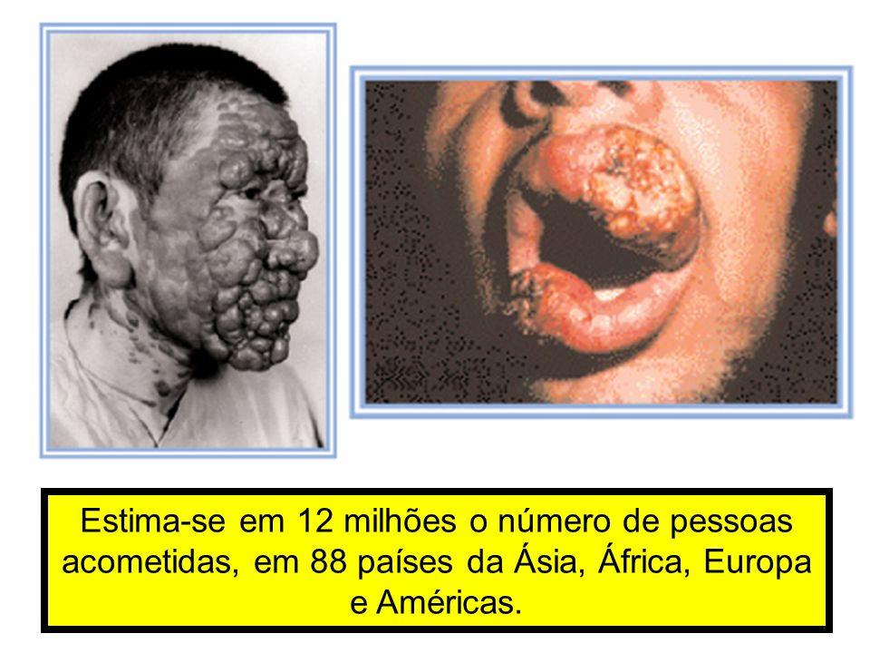 Estima-se em 12 milhões o número de pessoas acometidas, em 88 países da Ásia, África, Europa e Américas.