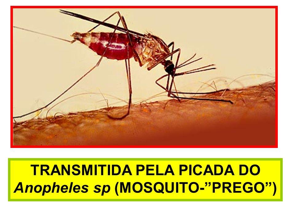 TRANSMITIDA PELA PICADA DO Anopheles sp (MOSQUITO-PREGO)