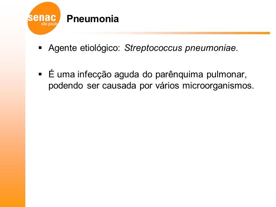 Pneumonia Agente etiológico: Streptococcus pneumoniae.