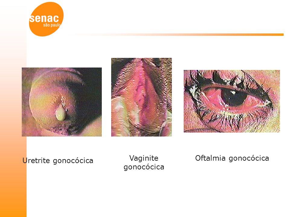 Uretrite gonocócica Vaginite gonocócica Oftalmia gonocócica
