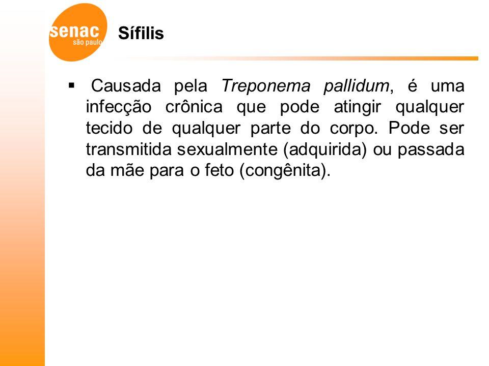 Sífilis Causada pela Treponema pallidum, é uma infecção crônica que pode atingir qualquer tecido de qualquer parte do corpo.