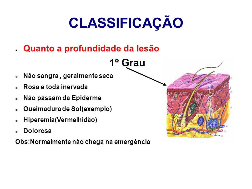 CLASSIFICAÇÃO Quanto a profundidade da lesão 1º Grau Não sangra, geralmente seca Rosa e toda inervada Não passam da Epiderme Queimadura de Sol(exemplo