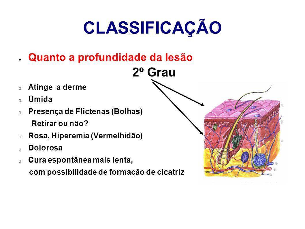 CLASSIFICAÇÃO Quanto a profundidade da lesão 2º Grau Atinge a derme Úmida Presença de Flictenas (Bolhas) Retirar ou não? Rosa, Hiperemia (Vermelhidão)