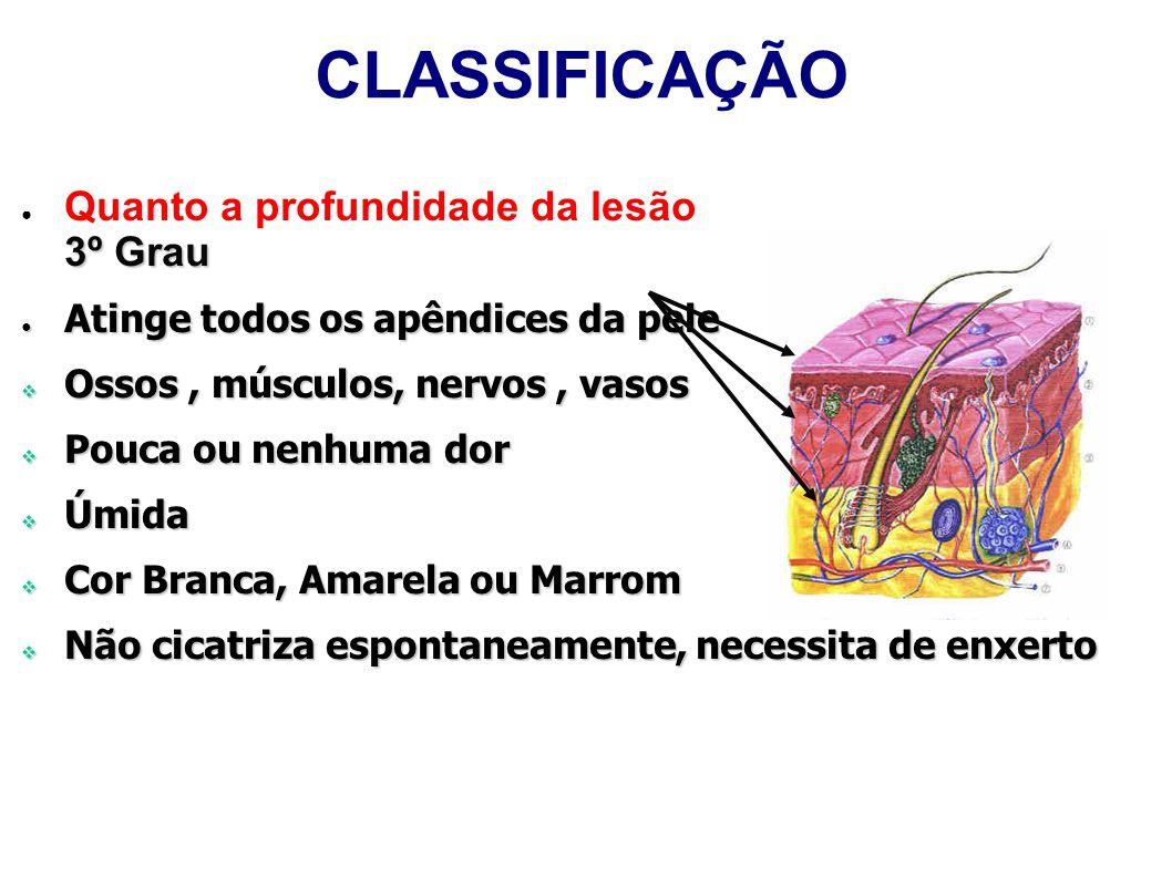 CLASSIFICAÇÃO 3º Grau Quanto a profundidade da lesão 3º Grau Atinge todos os apêndices da pele Atinge todos os apêndices da pele Ossos, músculos, nerv