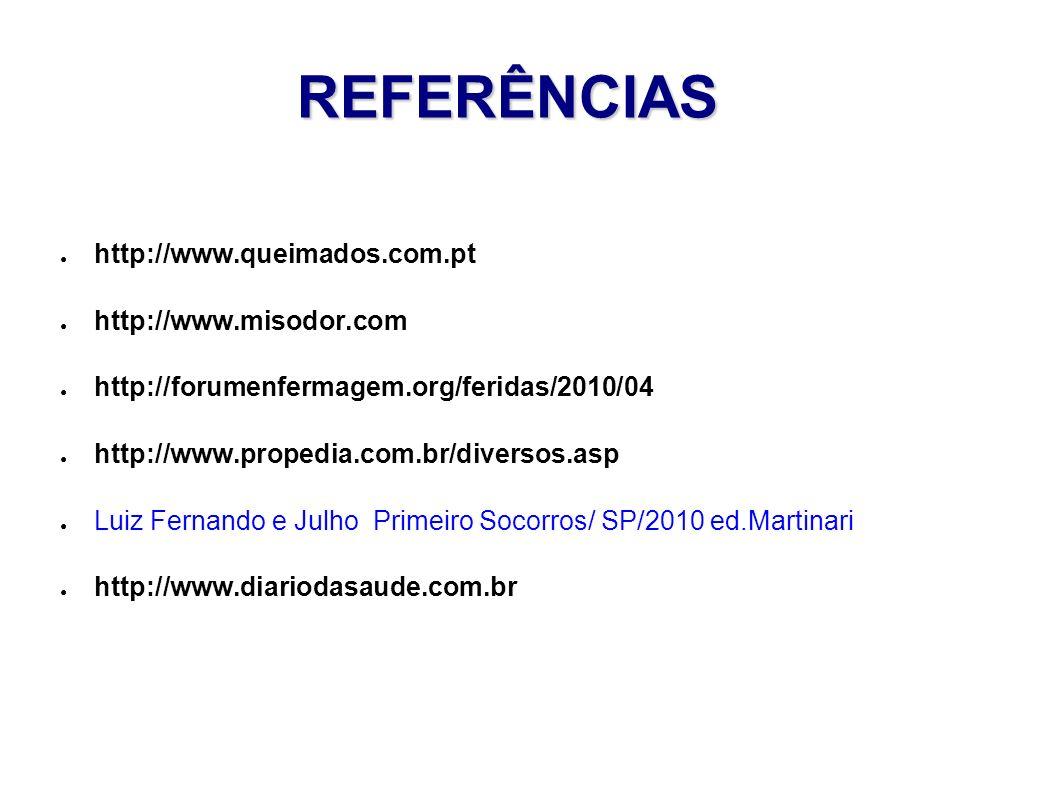 REFERÊNCIAS http://www.queimados.com.pt http://www.misodor.com http://forumenfermagem.org/feridas/2010/04 http://www.propedia.com.br/diversos.asp Luiz