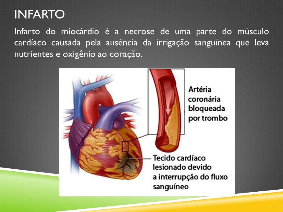 INFARTO Infarto do miocárdio é a necrose de uma parte do músculo cardíaco causada pela ausência da irrigação sanguínea que leva nutrientes e oxigênio