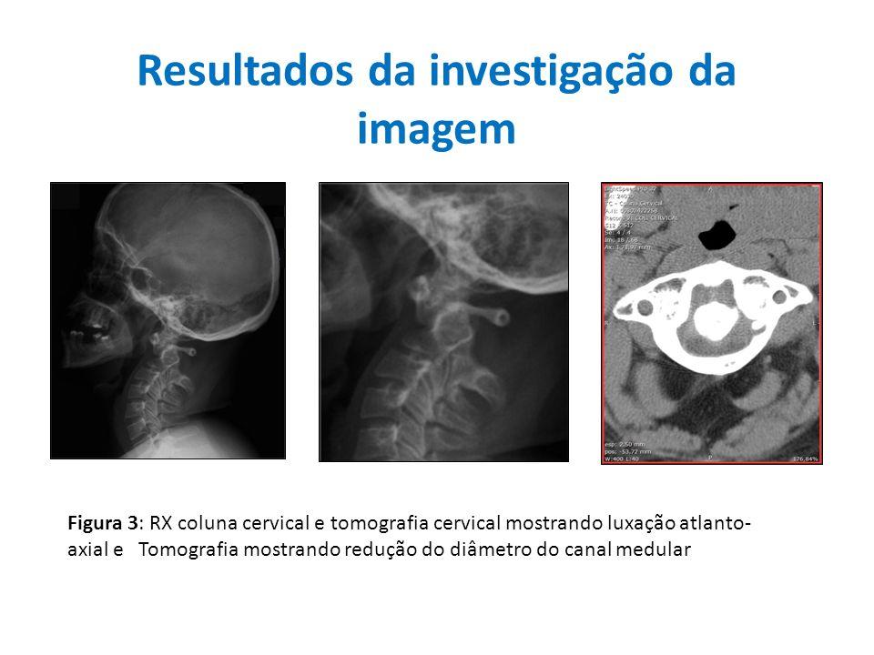 Resultados da investigação da imagem Figura 3: RX coluna cervical e tomografia cervical mostrando luxação atlanto- axial e Tomografia mostrando reduçã