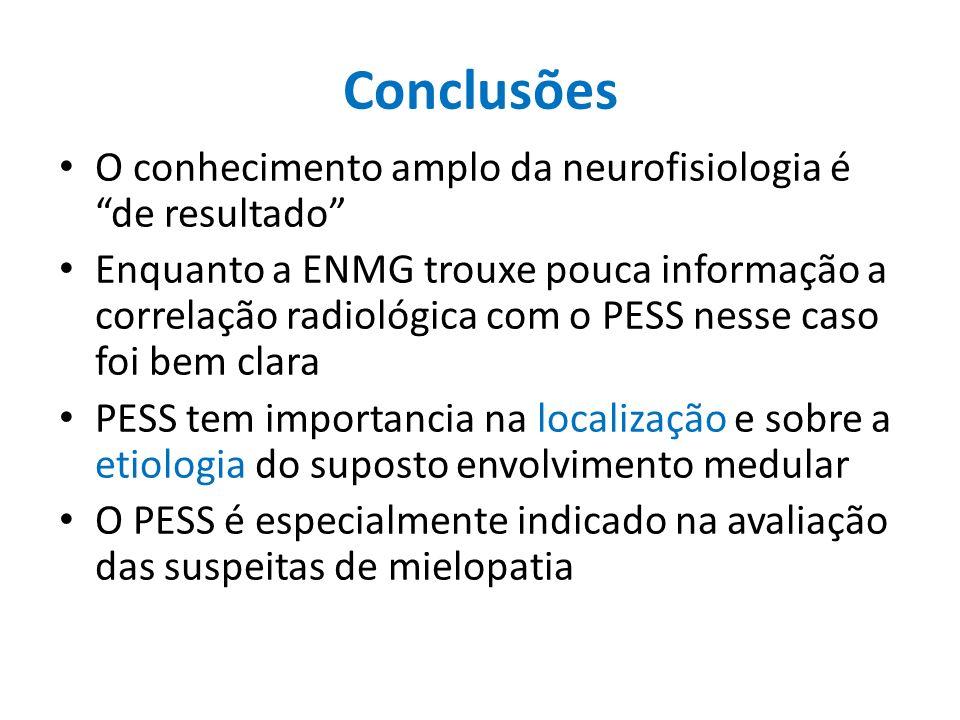 Conclusões O conhecimento amplo da neurofisiologia é de resultado Enquanto a ENMG trouxe pouca informação a correlação radiológica com o PESS nesse ca