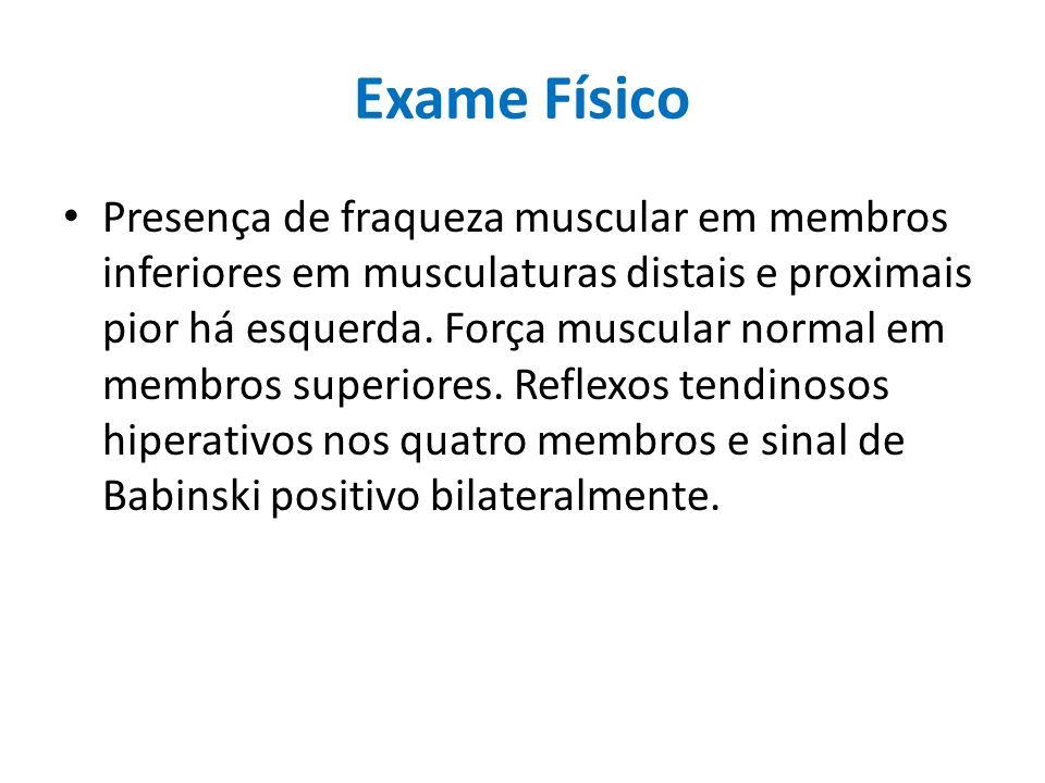 Exame Físico Presença de fraqueza muscular em membros inferiores em musculaturas distais e proximais pior há esquerda. Força muscular normal em membro