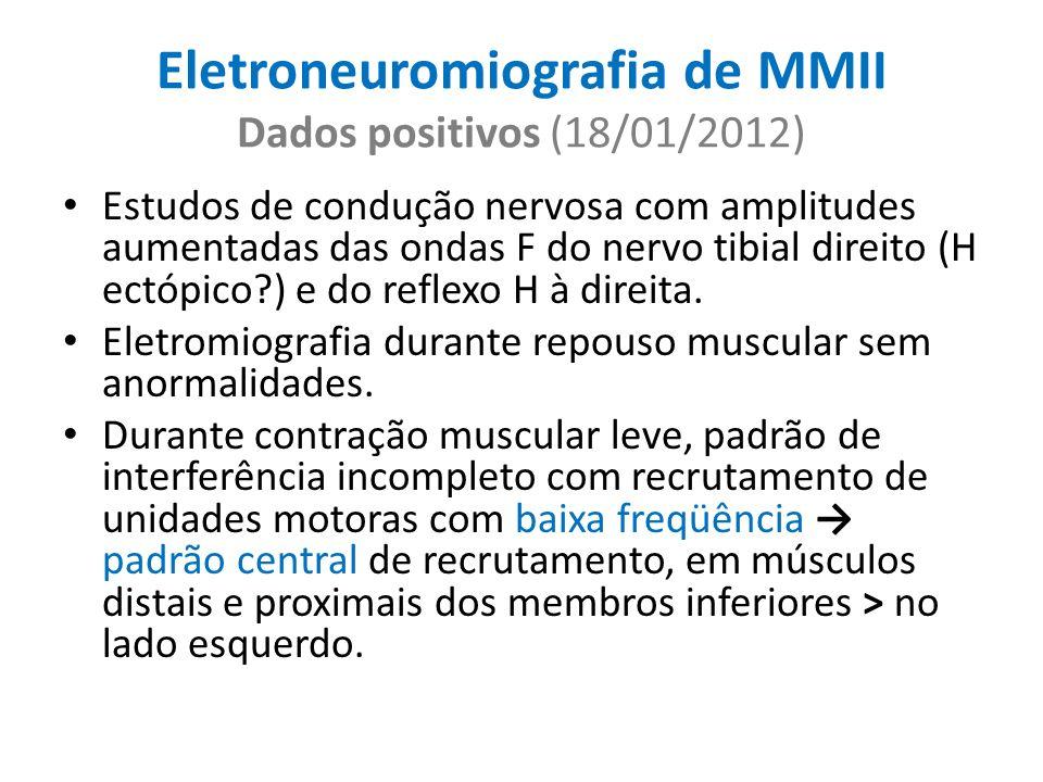 Eletroneuromiografia de MMII Dados positivos (18/01/2012) Estudos de condução nervosa com amplitudes aumentadas das ondas F do nervo tibial direito (H