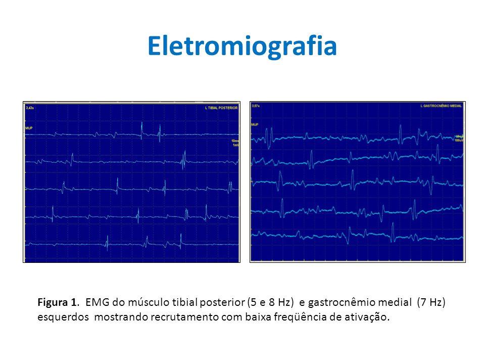 Eletromiografia Figura 1. EMG do músculo tibial posterior (5 e 8 Hz) e gastrocnêmio medial (7 Hz) esquerdos mostrando recrutamento com baixa freqüênci